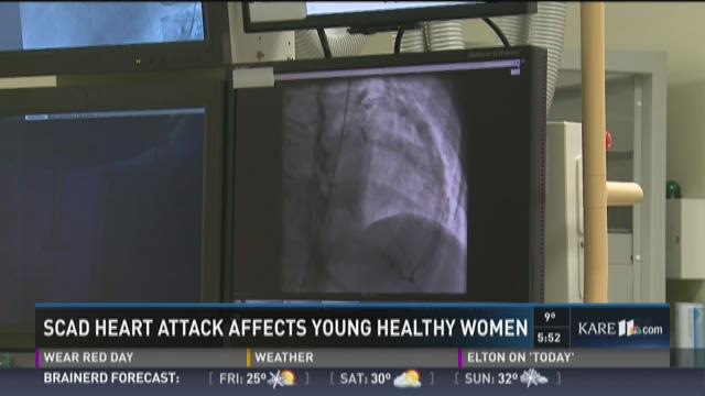 Heart attacks that effect young women