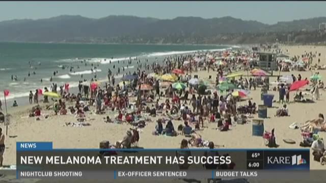 New melanoma treatment has success