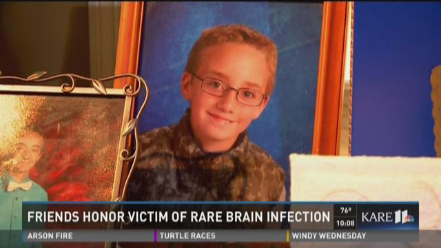 Friends honor victim of rare brain infection